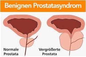 benignen-Prostatasyndrom