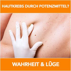 hautkrebs-potenzmitel